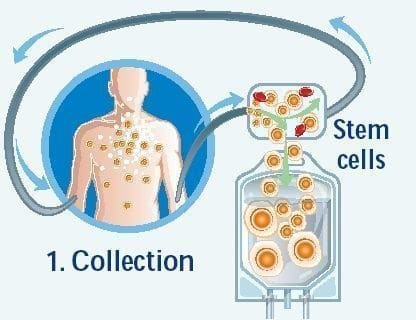 harvested peripheral blood stem cells 300x230 Stem Cell Regenerative Therapy ...