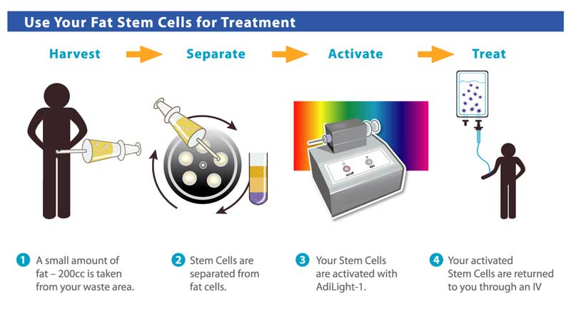 Adult Stem cells can be cultivated and transformed into specialized cells ...