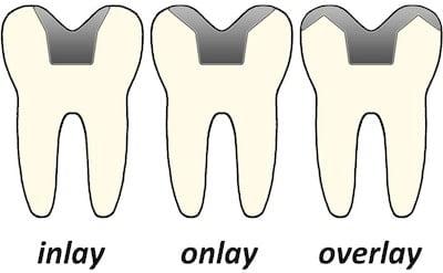 inlays-onlays-overlays-thailand-dentistry