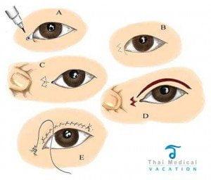 asian-eyelid-surgery-diagram-bangkok-thailand