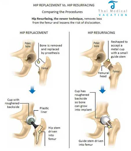 hip-replacement-thailand-vs-hip-resurfacing-thailand