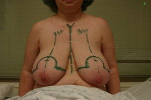 Breast-Reduction-Phuket