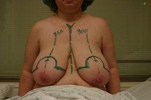 Breast-Reduction-Phuket