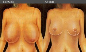 breast-reduction-bangkok