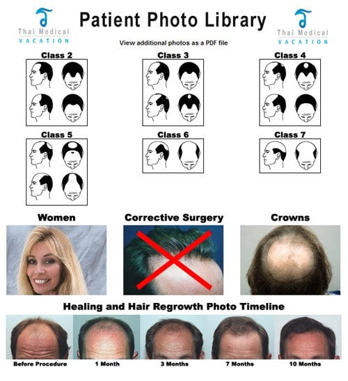 hair-transplant-in-thailand