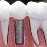 short-crown-implant-thailand