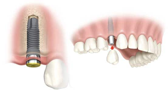 Immediate Load Dental Implants in Thailand