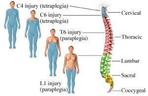 Stem-cell-treatment-of-Spinal-Cord-Injury