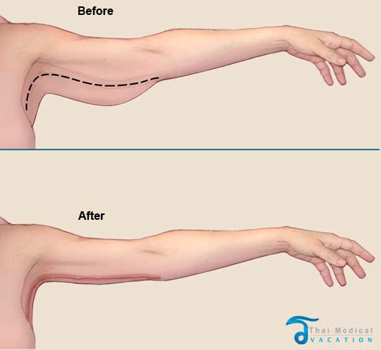 arm-lift-thailand-before-after