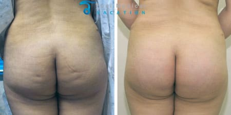 butt-lift-reshaping-lipotransfer-bangkok-thailand-ann
