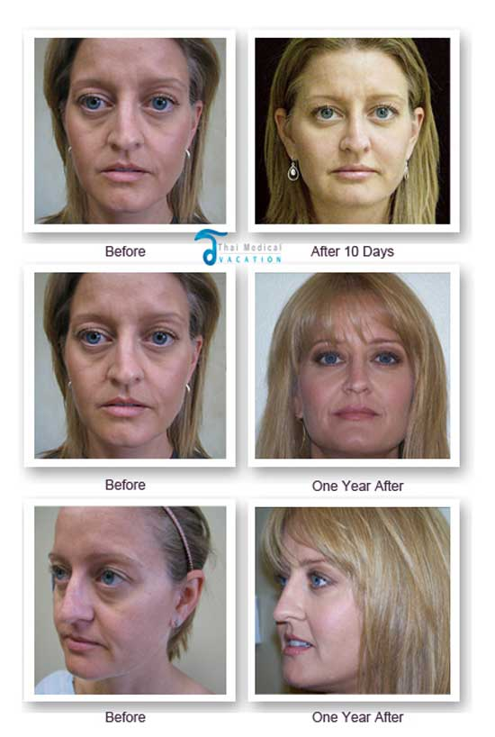 Face lift without surgery pictures