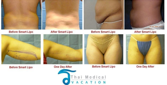 hidef-smartlipo-before-after