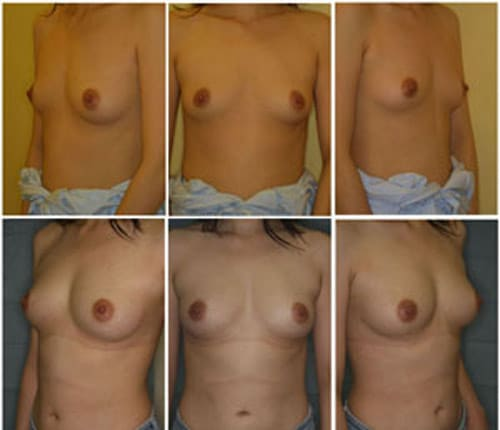 stem cell breast before after pictures reviews prices